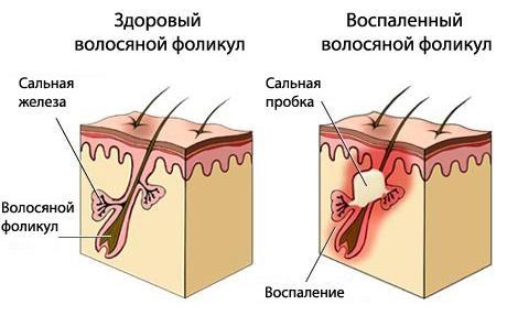 Жирная себорея кожи головы: симптомы и лечение