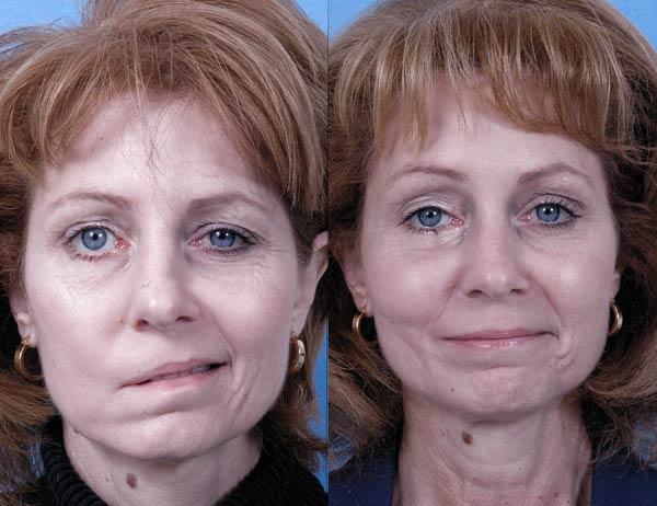 Искривление одной части лица у женщины, перенесшей инсульт