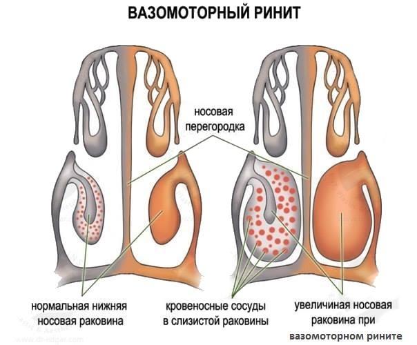 Отличие здоровой носовой полости и носовой полости при вазомоторном рините