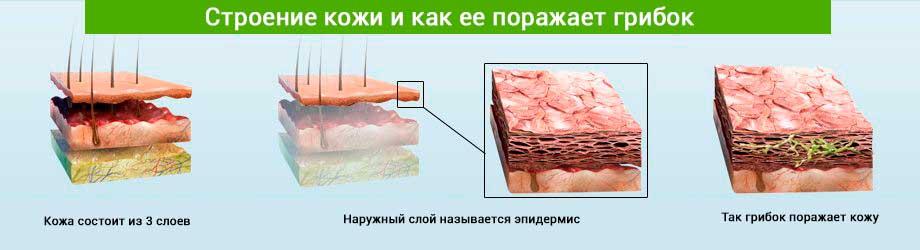 Процесс поражения кожи грибком