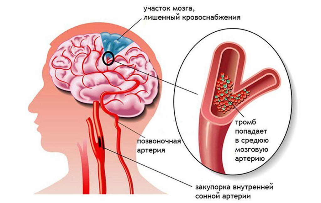 Схематичное изображение инсульта