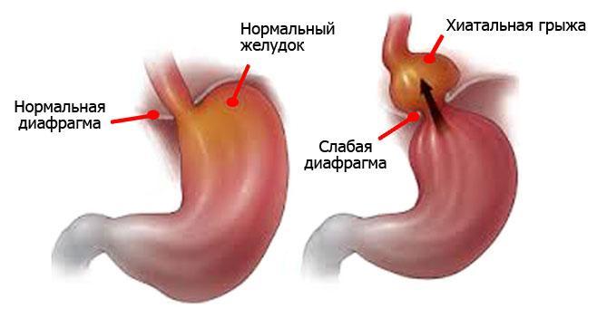 Схема желудка без патологий и с хиатальной грыжей
