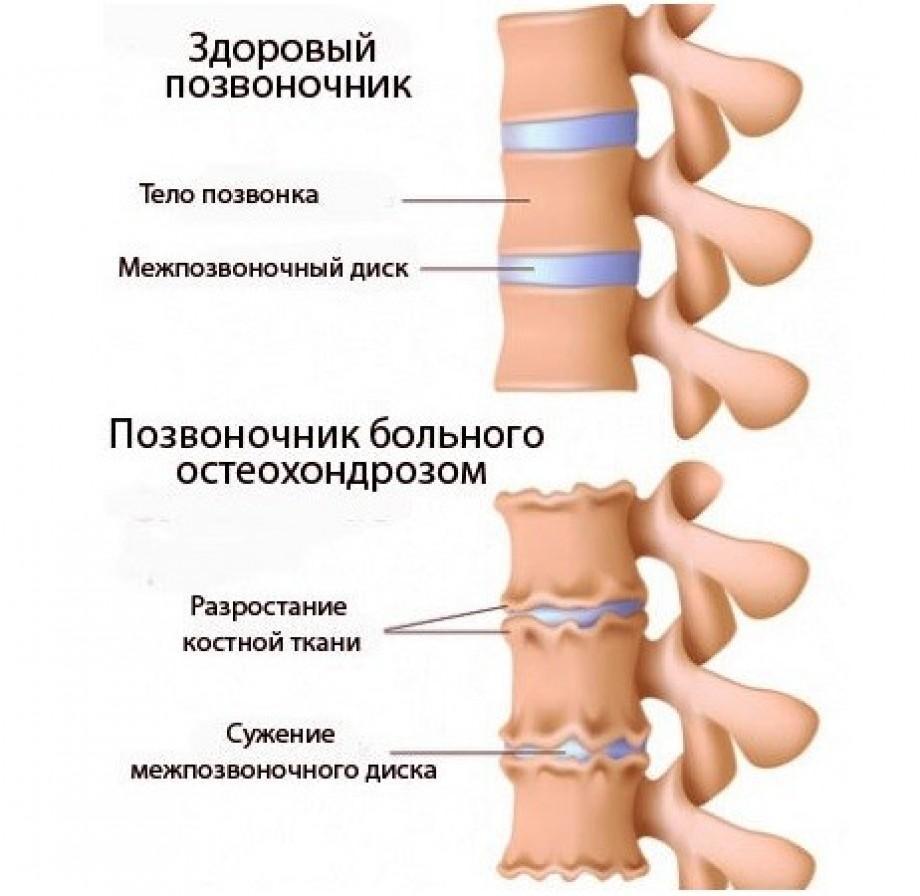 Так выглядит остеохондроз шейного отдела позвоночника