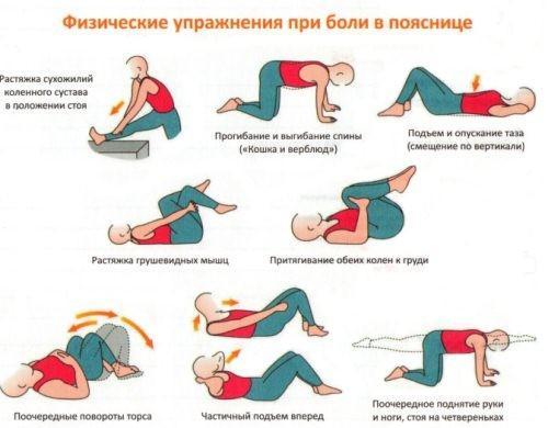Физические упражнения при межпозвоночной грыже
