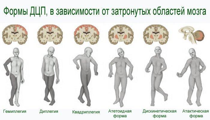 Формы ДЦП, в зависимости от затронутых областей мозга