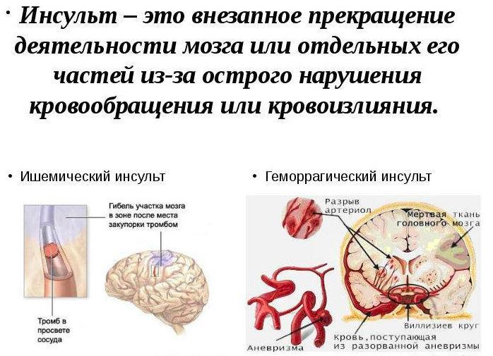 Что такое инсульт