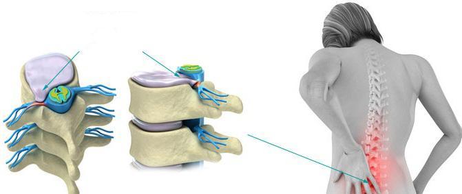 реабилитация после операции по удалению межпозвонковой грыжи