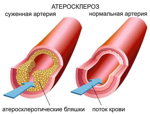 Артерии при атеросклерозе