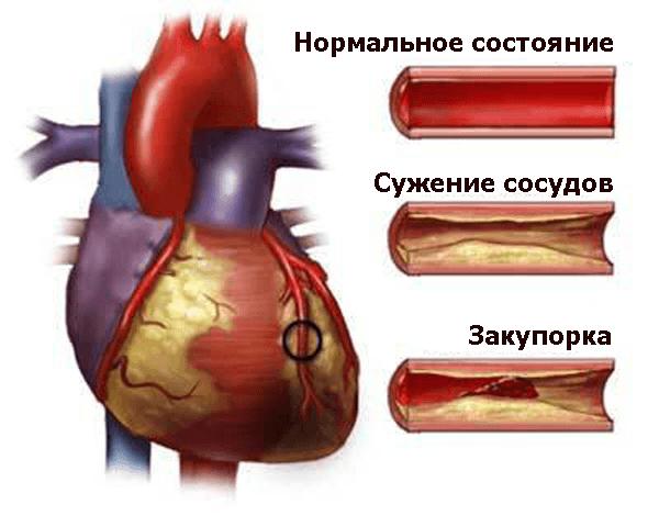 Атеросклеротическая болезнь сердца. Атеросклероз аорты