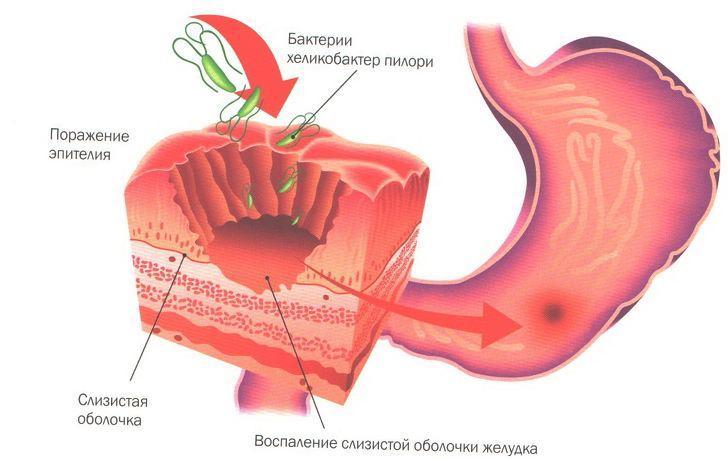 Гастрит - одна из причин болей в животе