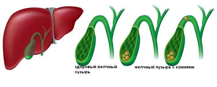 Здоровый желчный пузырь и пузырь с холециститом