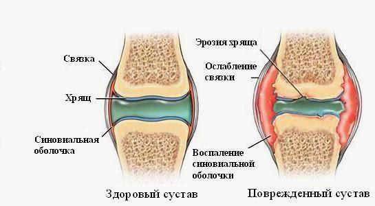 Здоровый сустав и сустав при ревматоидном артрите
