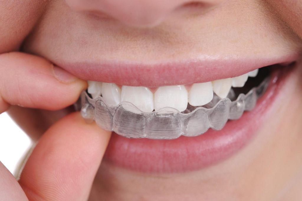 Капа для выравнивания зубов