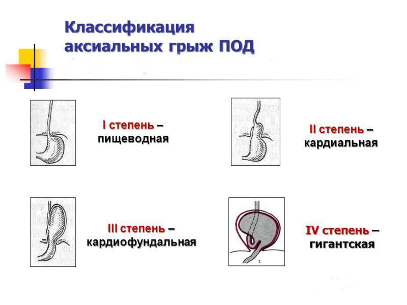 Классификация аксиальных грыж