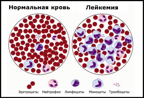Кровь при лейкемии