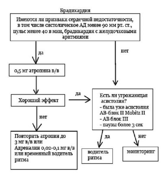 Лечение брадикардии