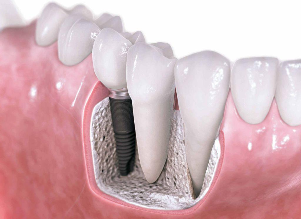 Наглядное изображение имплантов зубов