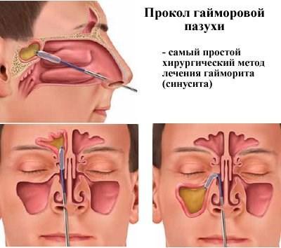 Наглядное изображение процедуры пункции
