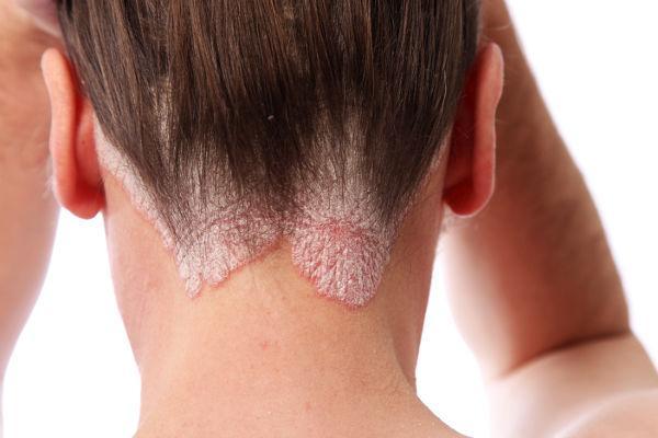 Нейродермит на коже головы
