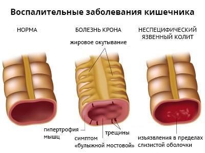 Неспецифический язвенный колит может стать причиной боли в кишечнике внизу живота