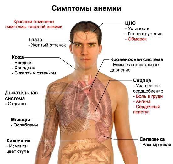 Признаки и симптомы анемии