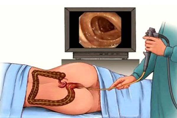 Проведение процедуры колоноскопии при колите кишечника