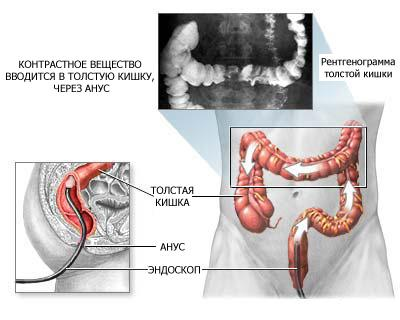 Процедура эндоскопии кишечника