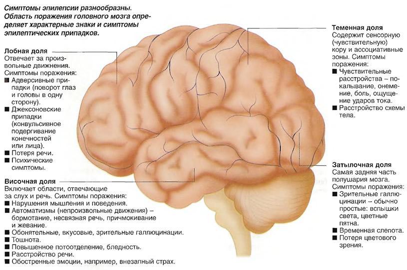 Симптомы эпилепсии в зависимости от области поражения головного мозга