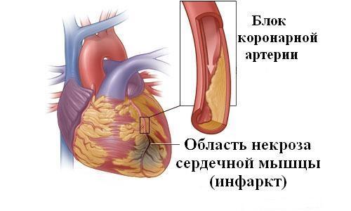 Схематичное изображение инфаркта