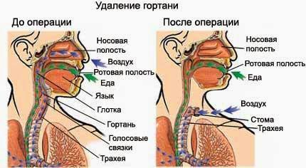 Удаление гортани на последних стадиях рака