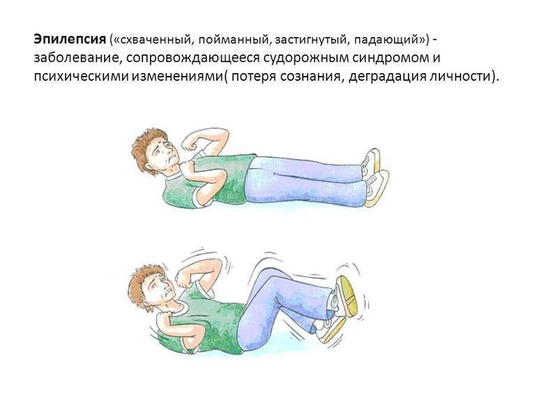 Эпилепсия: симптомы у взрослых