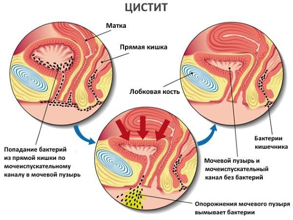 Схематичное изображение цистита