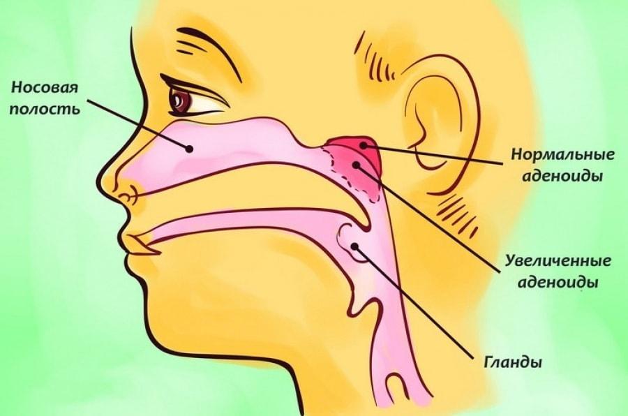Аденоидами - это разрастание глоточной миндалины
