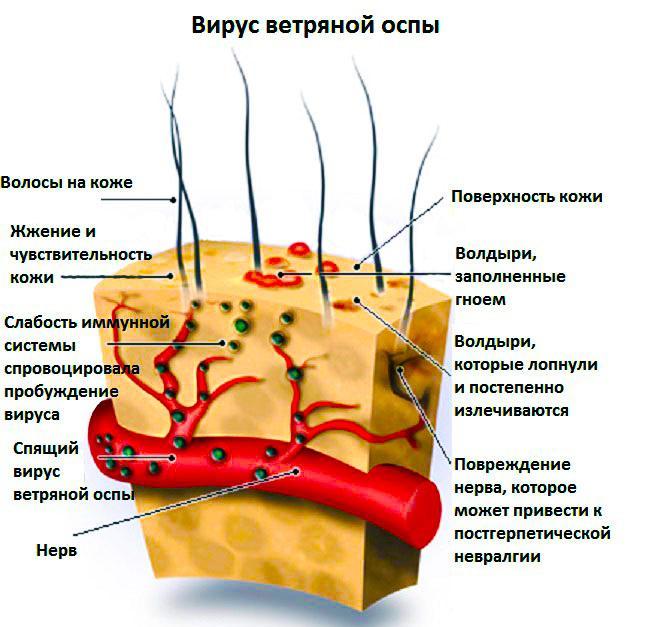 Вирус ветряной оспы