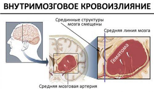 Внутримозговое кровоизлияние