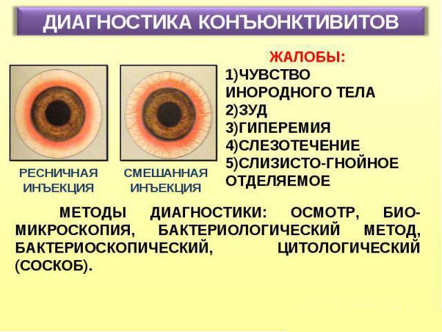 Диагностика конъюнктивита