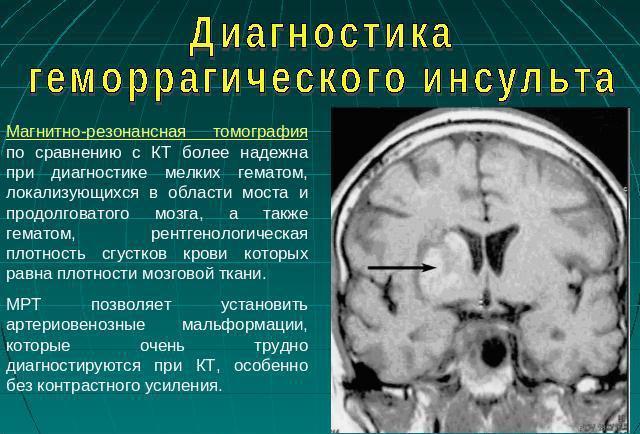 Диагностика кровоизлияния в мозг