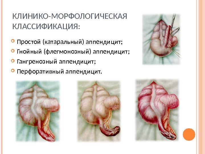 Классификация аппендицита