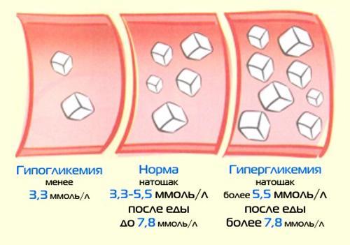Норма уровня глюкозы в крови у женщин