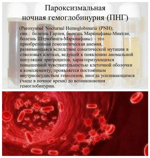 Пароксизмальная ночная гемоглобинурия