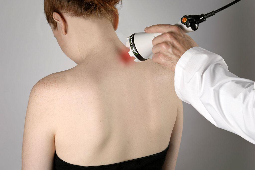 Проведение процедуры лазеротерапии