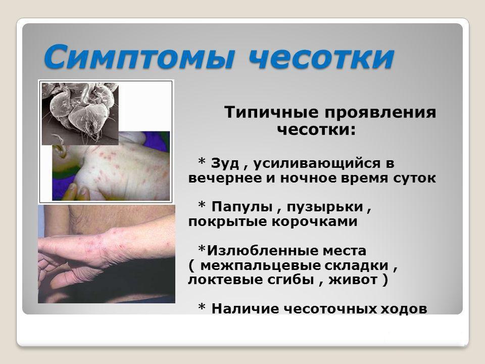 Симптомы чесотки