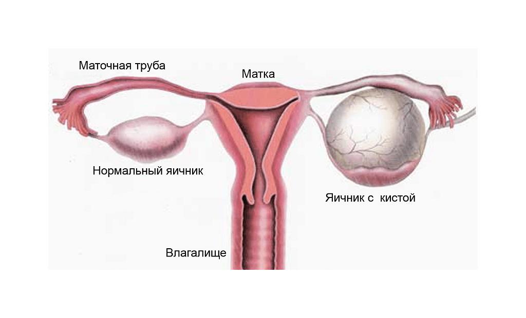 Схематичное изображение кисты яичника