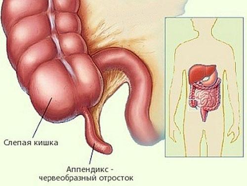Симптомы аппендицита у подростков