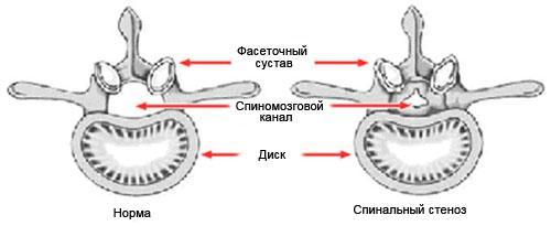 Здоровый диск и диск при спинальном стенозе