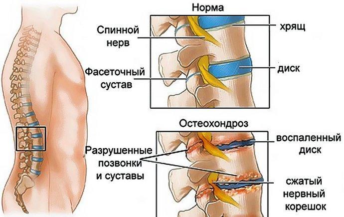 Что происходит с позвоночником при остеохондрозе