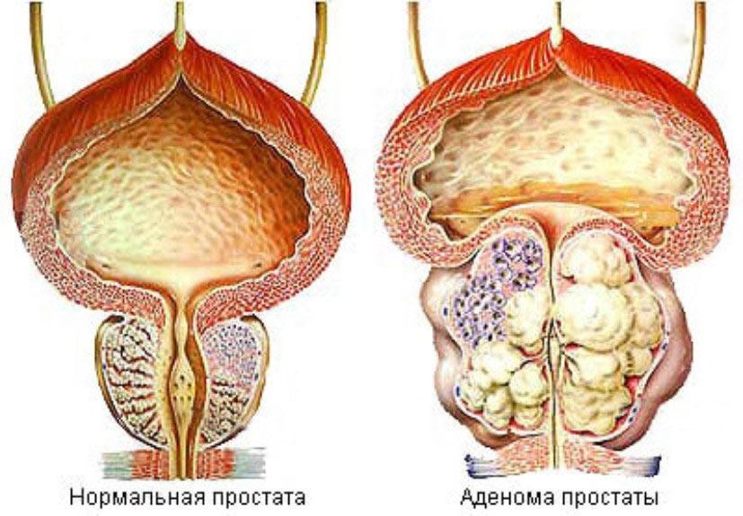 Аденома предстательной железы 2 степени что это