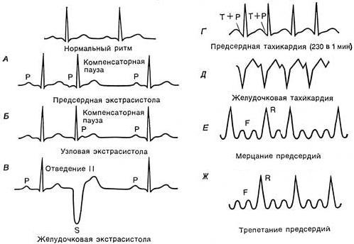 Аритмии классификация