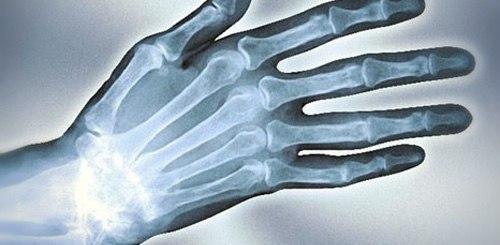 Артрит рук причины и признаки заболевание Методы современного лечения артрита рук