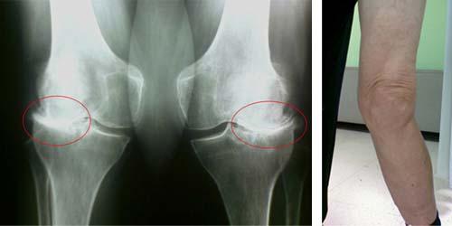Артроз коленного сустава 3 степени